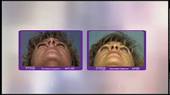 Before and after photo of a deviated septum