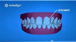 Big teeth and gums about invisalign teeth orthodontics